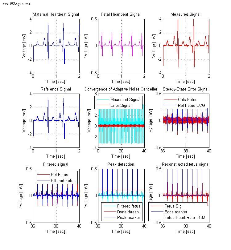 simulink——心电信号分析